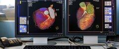 radiologia-tac-cuore-1500x630