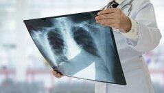 radiografia-preview-default